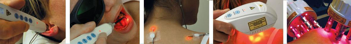 laserbehandling-rekke-diagnoser